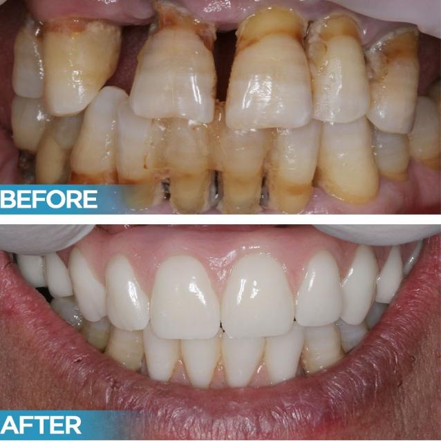 implantes dentários antes e depois