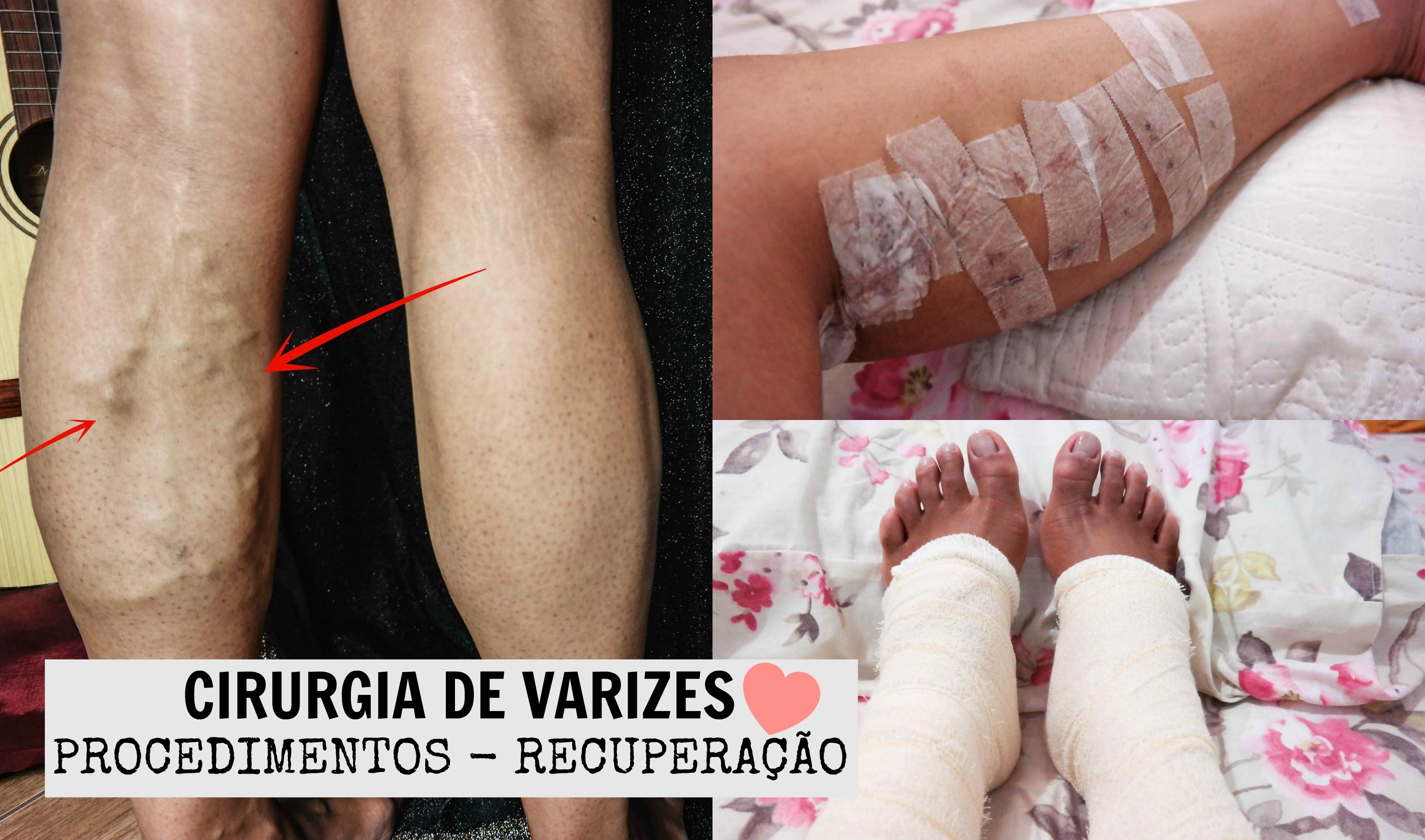 Antes e depois da cirurgia de varizes