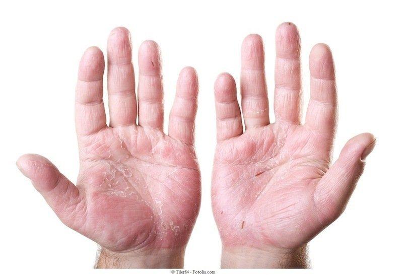 dermatite nas mãos