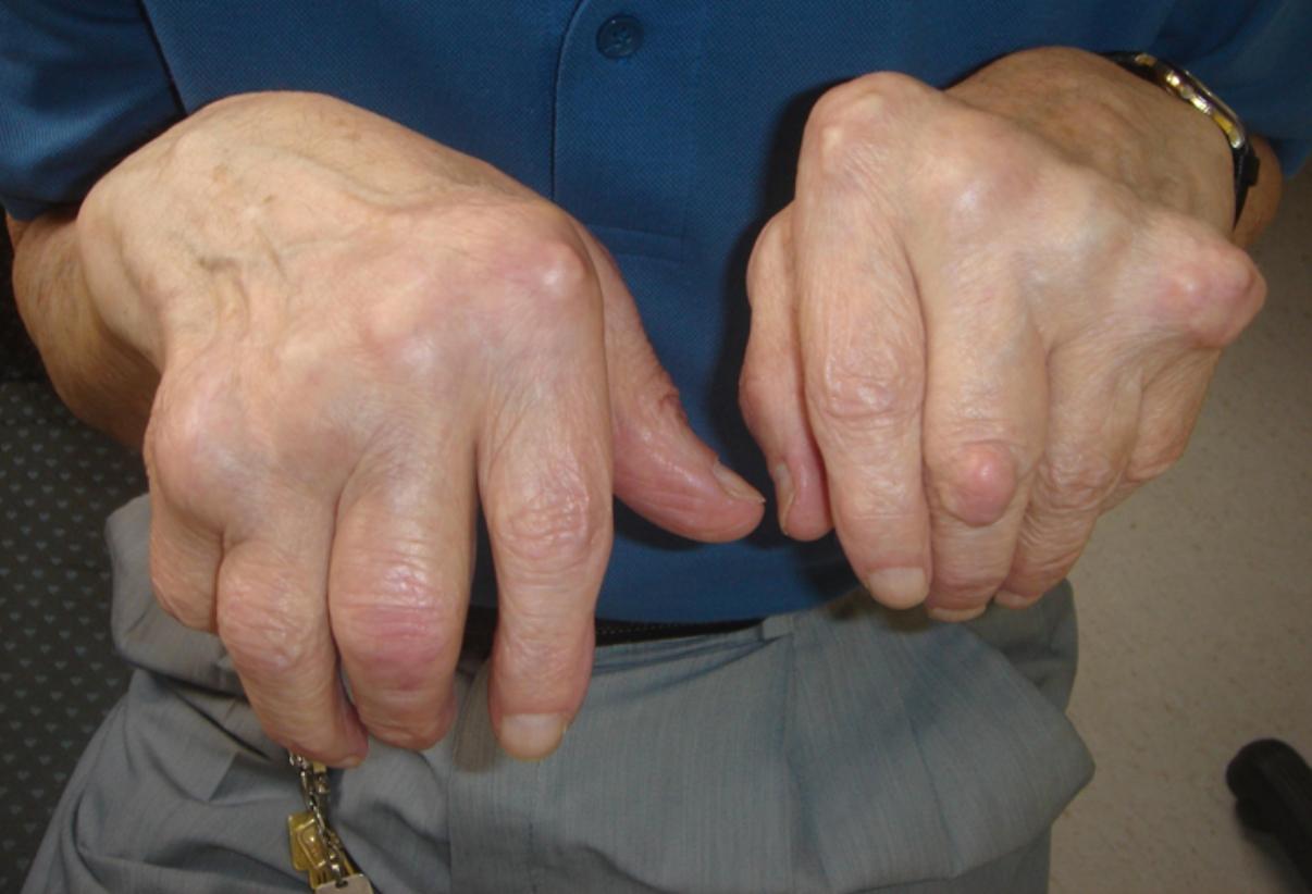 sintomas de artrite