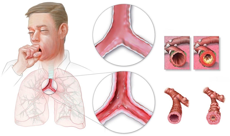 Bronquite crônica causa tosse
