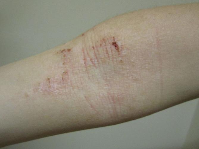 Foto de dermatite atópica