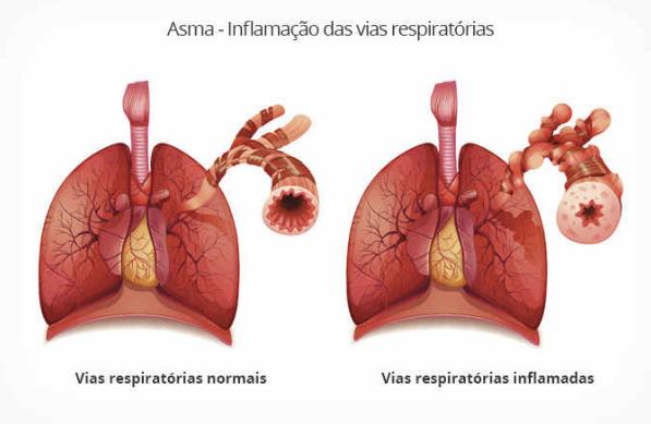 asma é uma inflamação das vias respiratórias