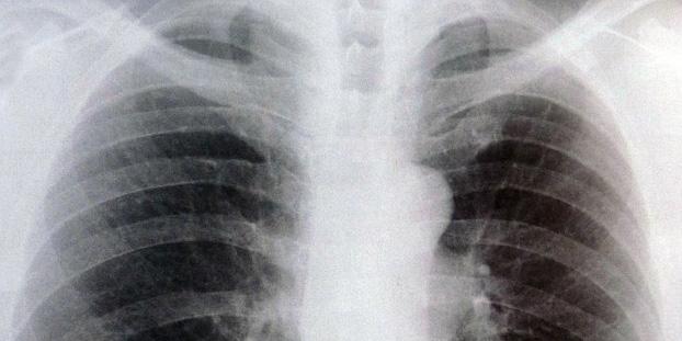 radiografia de tórax com sintomas de bronquite crônica